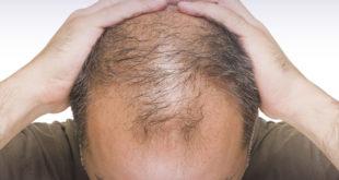 Caduta dei capelli, caccia ai rimedi efficaci